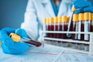 Newsletter: Flow Cytometry Applications for Blood Immunophenotyping
