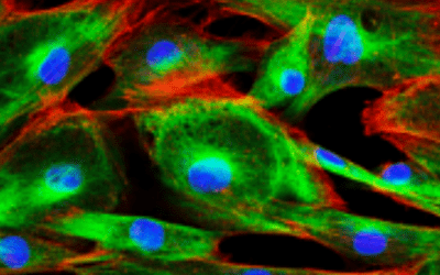 Newsletter: Intracellular Flow Cytometry Fundamentals